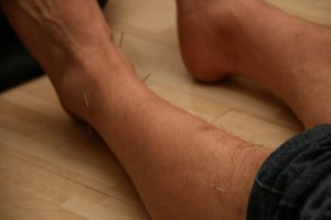 Person's lower leg with several acupuncture needles inserted into the skin