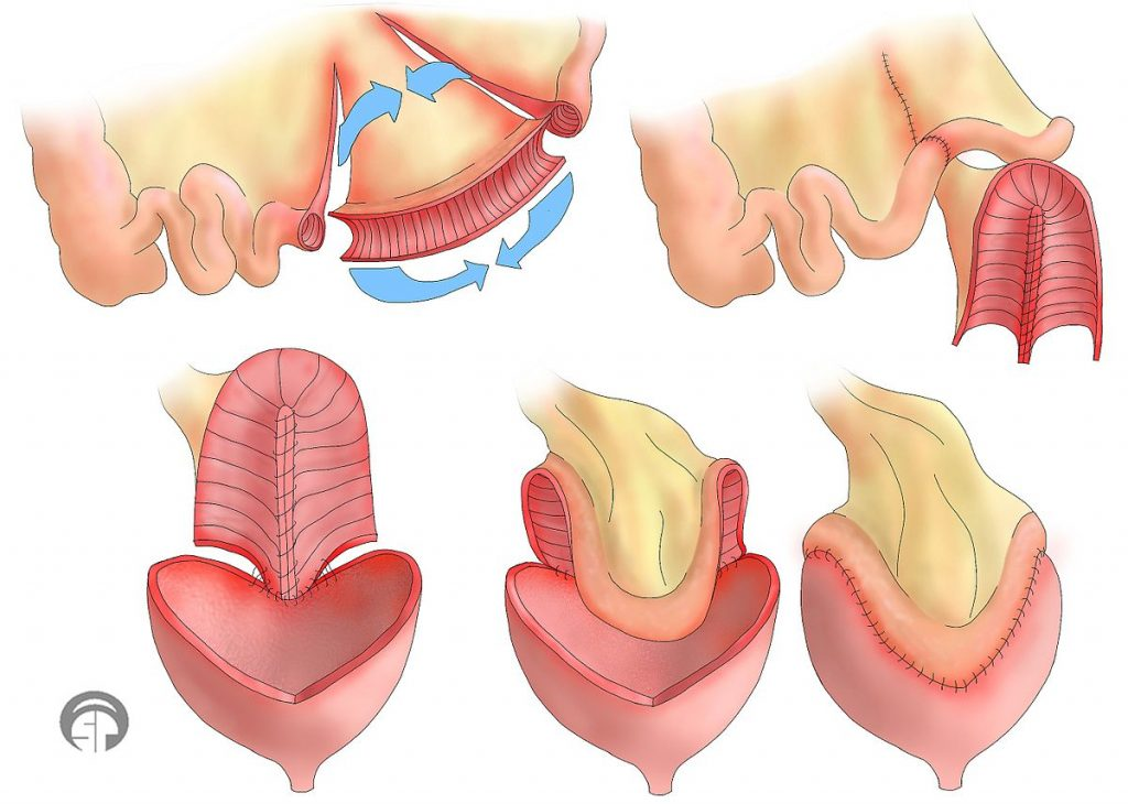 Bladder augmentation- A simplified step by step diagram of how parts of the intestine are taken to enlarge the bladder