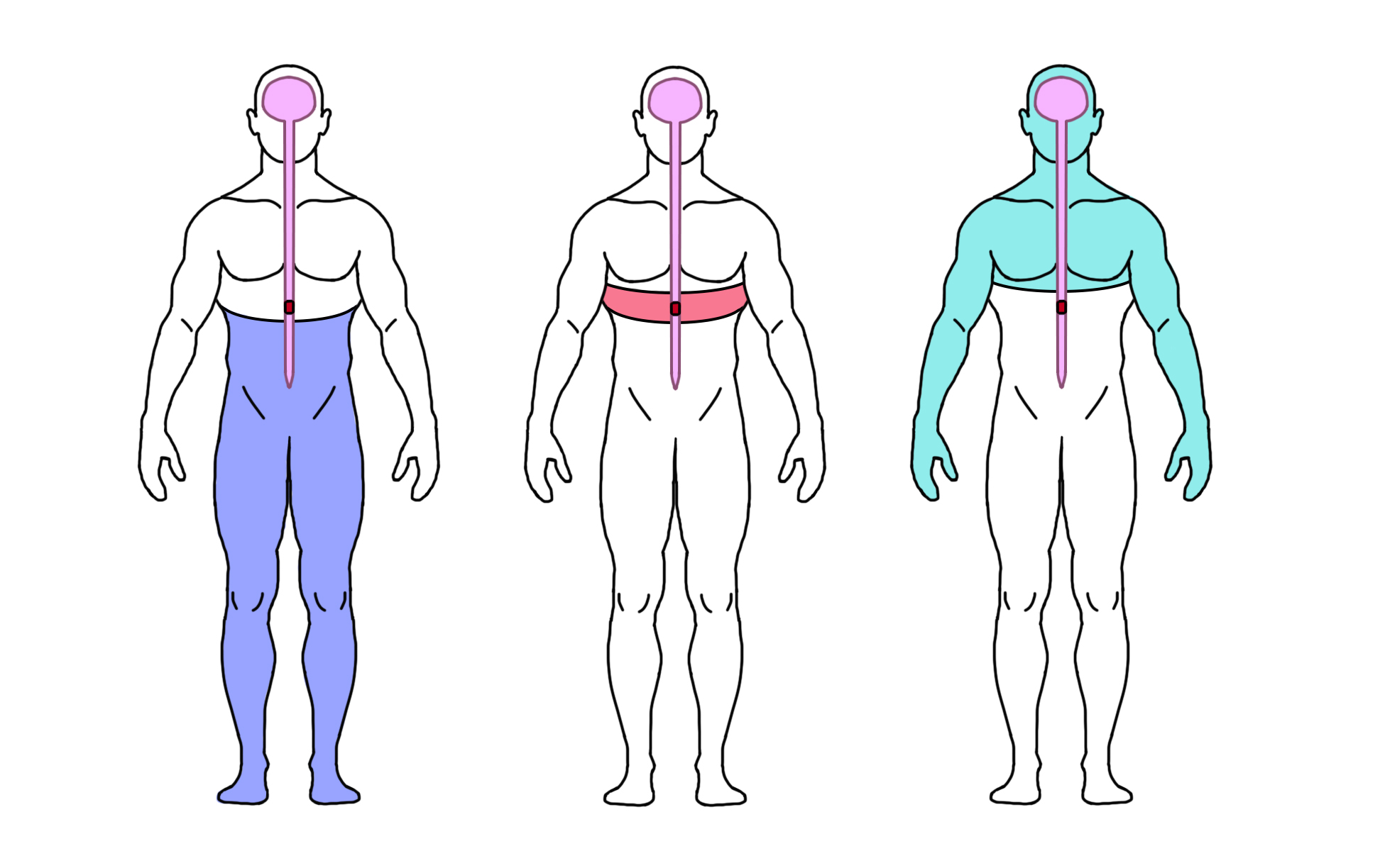Three silhouettes of a person's body with a brain and spinal cord. Left image shows the bottom half of the body colored purple. Centre image shows a band around the middle of the body in red. Right image shows all the body above the centre, including the arms in green.